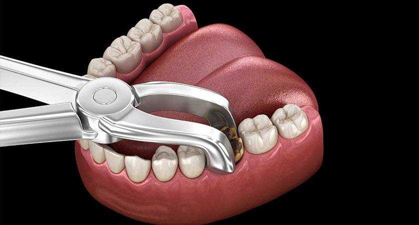 wisdom teeth healing process