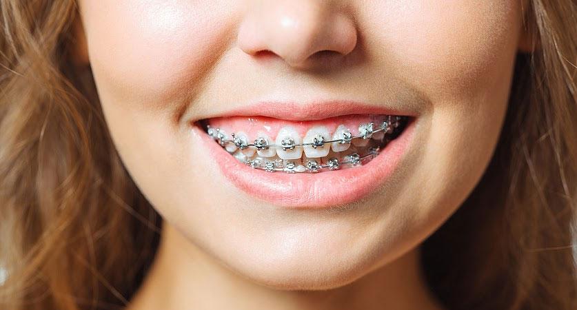 affordable braces near me